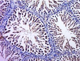 磷酸化三磷酸腺柠檬酸裂解酶抗体